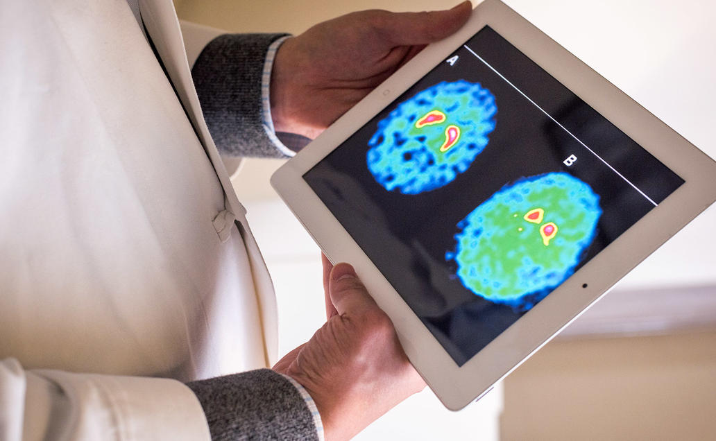 Doctor holding iPad with image of a brain scan.