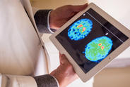Brain Scan on Tablet