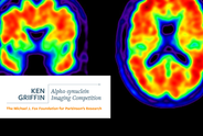 Ken Griffin Alpha-Synuclein Imaging Competition