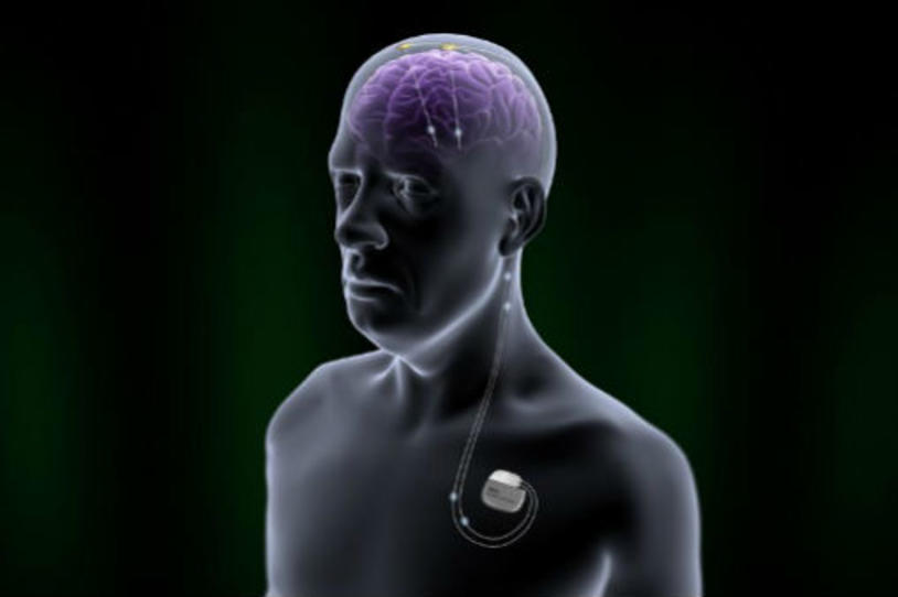 FDA Approves New Deep Brain Stimulation Device